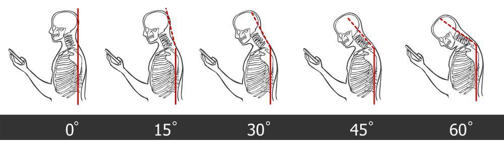 Schéma représentant les conséquences de l'utilisation du smartphone et les douleurs au cou engendrées