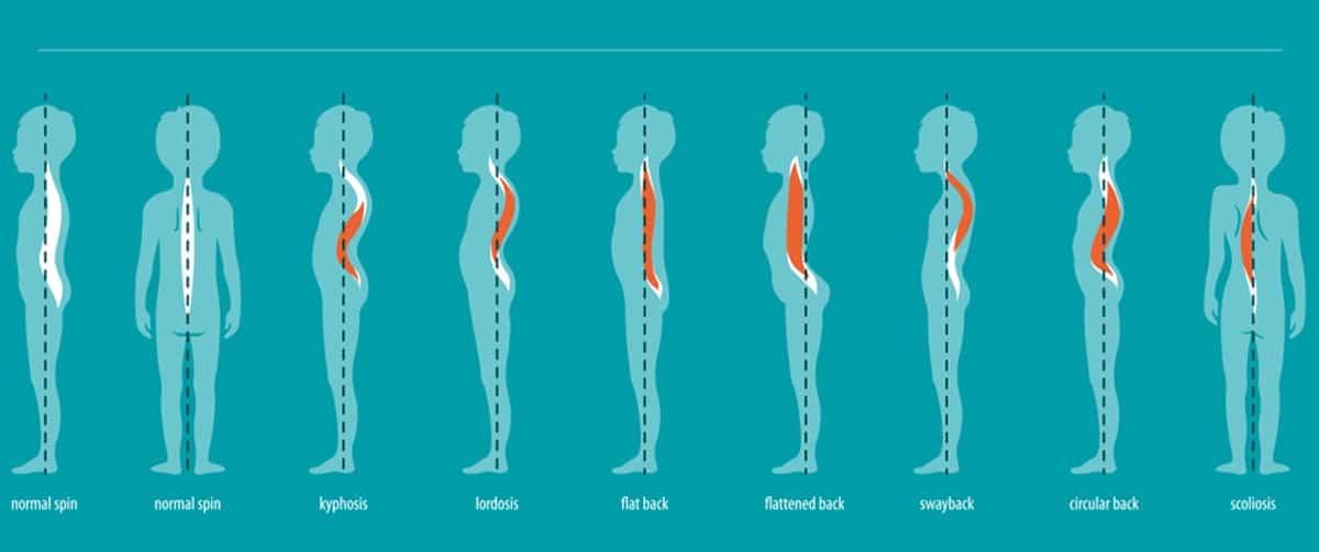 Différents types de mauvaises postures chez les enfants et adolescents